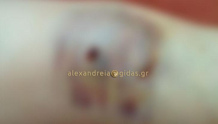 Επίθεση από αδέσποτα δέχτηκε γυναίκα στην Αλεξάνδρεια (προσοχή ακατάλληλες εικόνες)